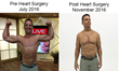 BACK FROM THE BRINK, Fitness Guru Vows To Help Himself, And Millions Rebuild Muscle And Improve Health Using Only Resistance Bands