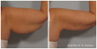 Dr. John R. Burroughs Now Offering FDA-Approved RFAL Treatments for Fat Reduction, Skin Tightening and Body Sculpting