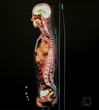 Strategic Radiology Begins Providing Global Services to WorldCare International, Inc.