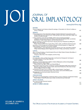 Microthreaded Dental Implants Preserve Crestal Bone