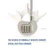 Mexico's First Spinal Implant Using VTi's Interfuse is a Success