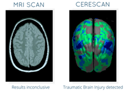 CereScan brain imaging