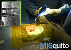 SpineFrontier, Inc's MISquito Percutaneous Pedicle Screw System