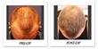 Beverly Hills Physicians Announces Platelet Rich Plasma Treatments for Skin/Facial Rejuvenation and Hair Restoration