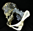 axial3D precise 3D printed pelvis that facilitated preoperative planning, reduced theatre times and improved the surgical outcome for patient.