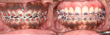 Before (upper left) and after (upper right) treatment for dark gums. The bottom gum tissue is yet to be addressed.