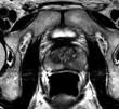 Breakthrough Using MRI Scans Spotting Prostate Cancer Over Invasive Biopsies