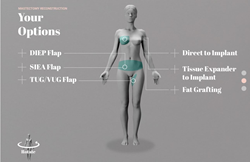Advanced Breast Reconstruction Options