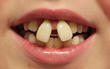 Orthodontists Report Uptick in Number of Patients Attempting DIY Teeth Straightening