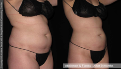 Liposuction - Before & After - Abdomen and Flanks