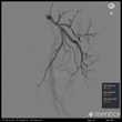 Mentice PAE - Internal Iliac Artery Angiography