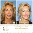 Natural Faclift