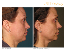 Hinsdale Ultherapy treatment