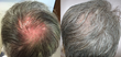 PRP is a great non-surgical hair restoration treatment!