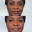 Sculptra Aesthetic for Natural-Looking Results