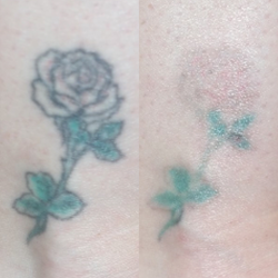 Before & After: Black Ink—1 PiQo4 Treatment