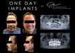 Dr. Dan Holtzclaw Completes 1,000th All-On-4(TM) Style Dental Implant Procedure