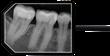 Apex Dental Sensor X-Ray