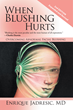 Author Explains Disabling Blushing, How To Treat It