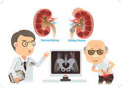 Dr. David Samadi comments on role of obesity and diabetes in kidney stone formation