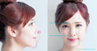 The Sloane Clinic™ Launches 3D Nose Lift; Threadlift with Fillers to Recreate a Sharper and More Defined Without Surgery