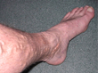 List of Habits that May Cause or Worsen Varicose Veins Highlights their Treatability, says Northwest Vein & Aesthetic Center