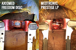 Side by side of the AxioMed Freedom Disc and the Medtronic Prestige LP disc