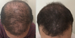 Los Angeles Hair Transplant Doctor Announces a Novel Non-Surgical Method to Attack Baldness: Scalp Micropigmentation