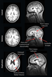 RSNA: MRI Reveals Striking Brain Differences in People with Genetic Autism