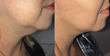 NeckTite Offers a Safe and Proven Way to Non-Surgically Contour and Tighten the Neck, According to Dr. John R. Burroughs
