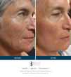 SkinPen Precision Microneedling Before and After