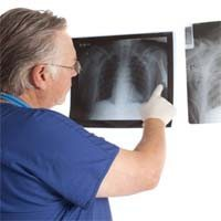 Little Difference Found Between Mesothelioma Surgery Survival