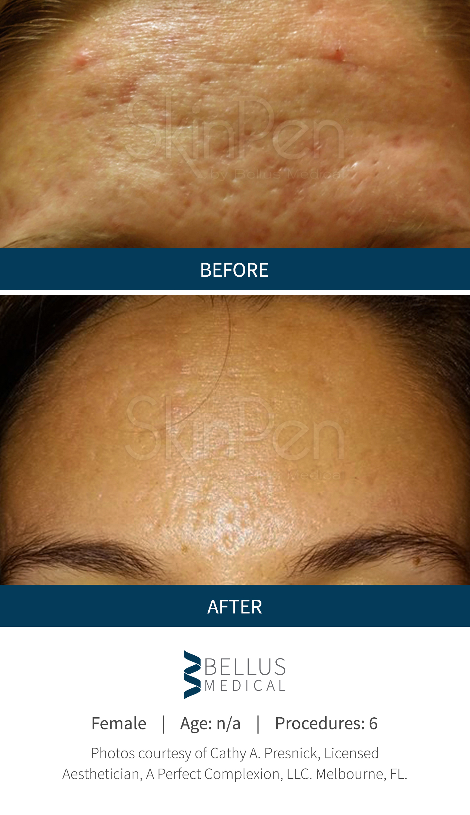 Fda Clearance Of The Skinpen 174 Precision Microneedling Device Makes It The Only Safe And Legally