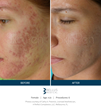 SkinPen Precision Microneedling Before and After for treatment of acne scarring
