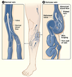 Varicose Veins Myths Highlight the Importance of Understanding Medical Options, says Northwest Vein & Aesthetic Center