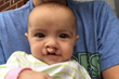 The Fullman & Lawrence Agency Inaugurates East Texas Charity Drive to Benefit Baby Girl Born with Cleft Lip and Palate