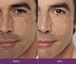 Consumers experienced a 44% reduction in the appearance of pores