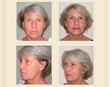 Atlanta Plastic Surgeon Celebrates 20 Years of Performing Innovative New Facelift