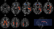 RSNA: Football Position and Length of Play Affect Brain Impact