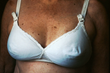 Increase in Breast Reconstruction Popularity Highlights the Depth of Plastic Surgery, says Dr. J Plastic Surgery