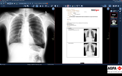 RADLogics to Showcase at RSNA 2017 its Virtual-Resident??Machine Learning Image Analysis Software?Fully Integrated with Agfa HealthCare Enterprise Imaging Solution