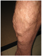 Advice on Varicose Vein Treatment Underlines the Benefits of Proactive Medical Measures, says Northwest Vein & Aesthetic Center