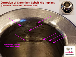 Picture showing a removed hip implant (explant) with corrosion of the chromium cobalt  component