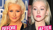 Leading Facial Plastic Surgeon Benjamin C. Stong Quoted in RadarOnline Articles on Potential Cosmetic Surgery Mishaps by Christina Aguilera and Kourtney Kardashian