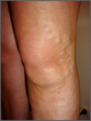 Varicose Vein Treatment Coverage in International Media Highlights Worldwide Appeal of Non-Invasive Treatments for Enlarged Veins, says Northwest Vein & Aesthetic Center