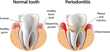 Periodontal Disease/Esophageal Cancer Correlation Bolsters Linkage Between Oral Health and Overall Health, says Beverly Hills Periodontics & Dental Implant Center