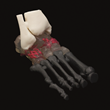 axial3D patient specific 3D printed orthopaedic preoperative model