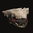 axial3D patient specific 3D printed maxillofacial preoperative model