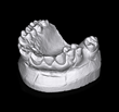 3D Scan Sample of Dental Mold