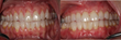 Before (left) and After (right) the patient was treated with the Pinhole Surgical Technique.